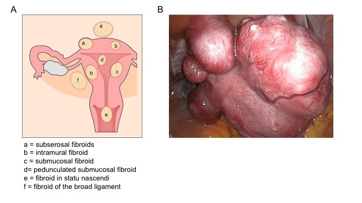 uterine_fibroids [TUSOM | Pharmwiki]