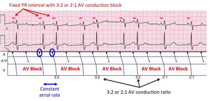 The Atrial Rate Is 100/min With A Fixed PR Interval, And Either A 3:2 Or 2:1  AV Conduction Block. ECG Modified From Wikipedia Commons (Courtesy Of Jason  E ...  2 1 Degree
