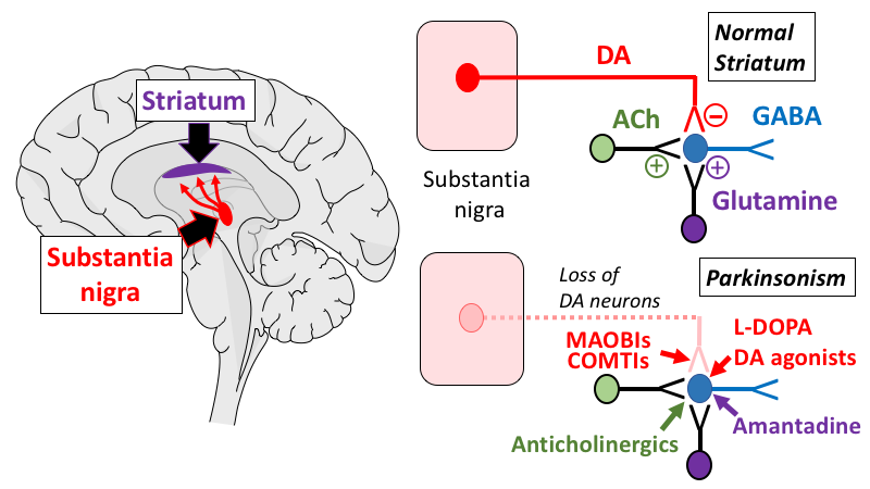 Treatingparkinsonsdisease tusom pharmwiki schematic of the neurologic pathways affected in parkinson disease pd and the major sites of action of medications used for treatment of its motor ccuart Image collections