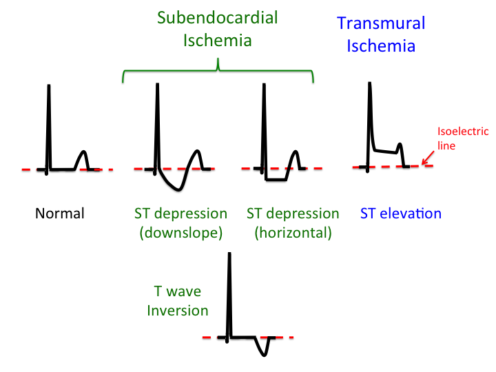 treatment_of_angina [TUSOM | Pharmwiki]